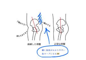 骨盤前傾の図